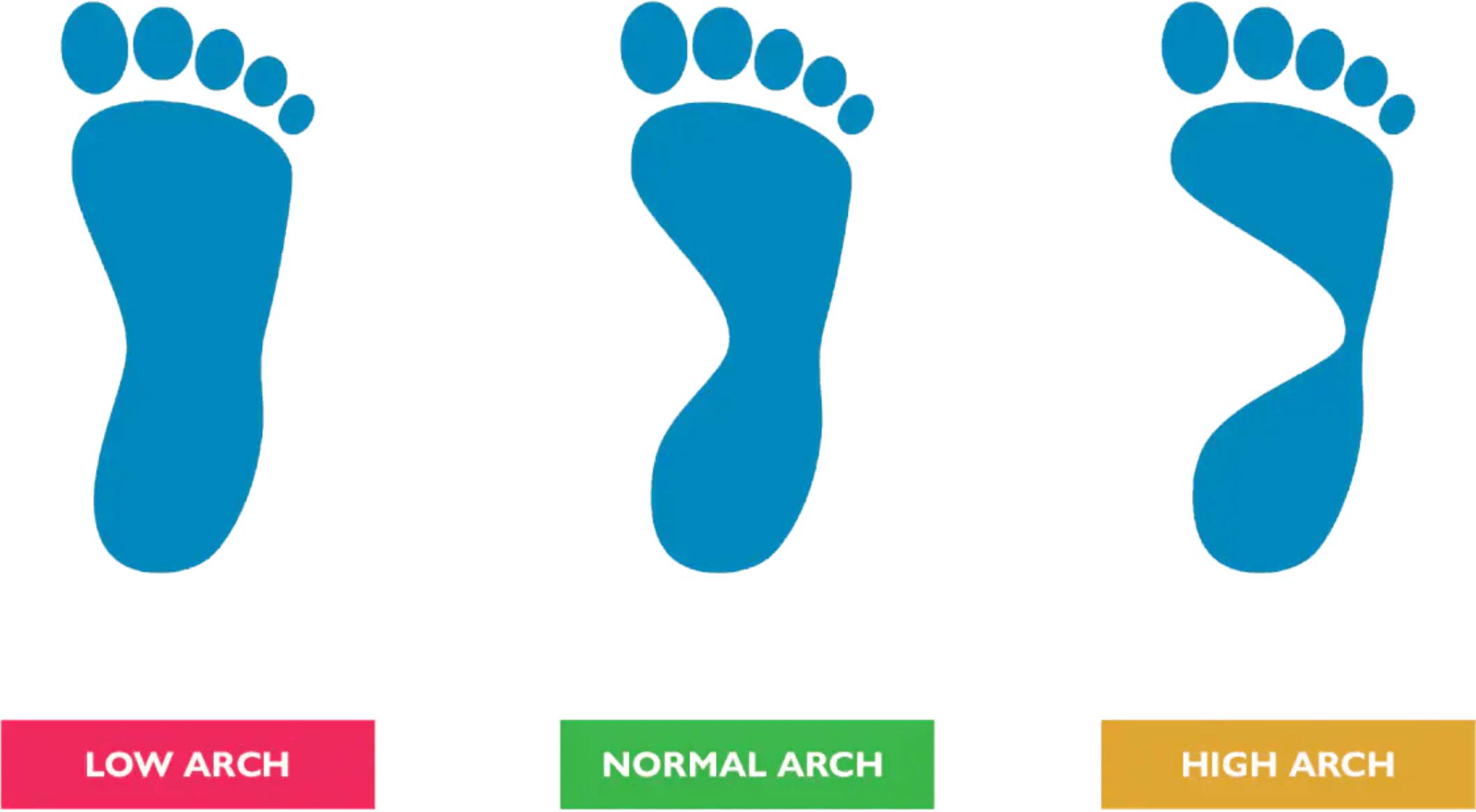 Gait analysis arch image